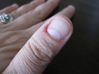 Chew the skin around your nails this usually goes with nail biting