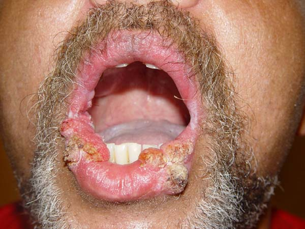 the beginning of a cold sore help