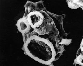 Ameba comedora de cérebros