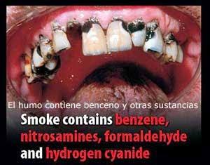 el humo contiene benceno y otras sustancias toxicas