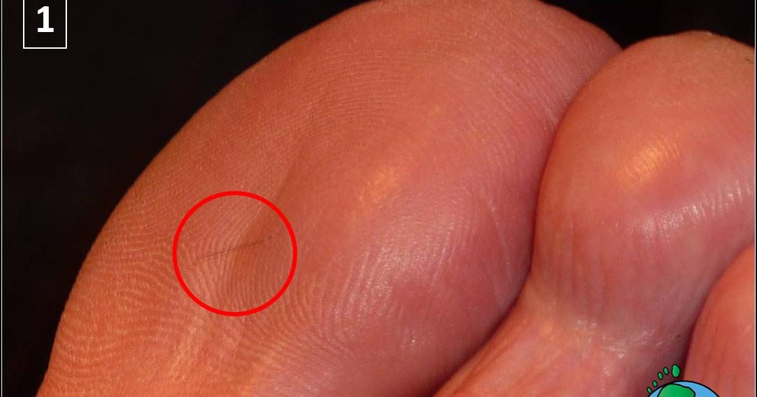 Los ungüentos del hongo de los pie y las manos