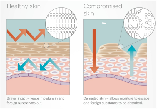 eczema asthma and resilient skin barrier Although eczema is not necessarily an allergic disease, allergens -- especially food allergens -- can play a role, and it is common among people with asthma.