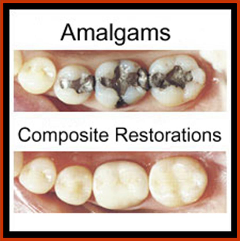 Amalgam Vs. Composite; Which one is the better of the two?