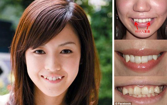 Japanese Girl with Crooked Tooth