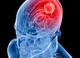 Pengobatan Tradisional Penyakit Tumor Otak