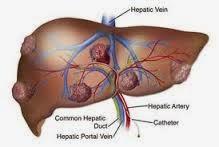 penyebab dan pencegahan kanker hati