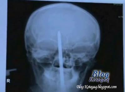 gambar x-ray
