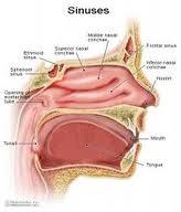obat tradisional sinusitis yang mujarab