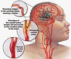 Penyebab Stroke Pada Anak Dan Remaja