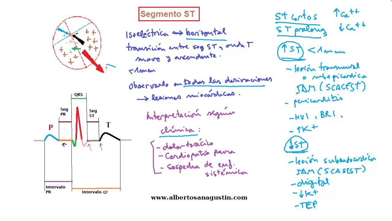 Segmento ST en el electrocardiograma.