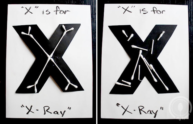 Toddler/Preshooler letter of the week craft X is for X-Ray with related craft, tracing sheets and fruits/vegetables.