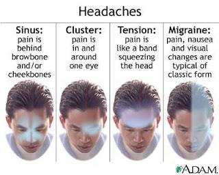 various-types-of-headache