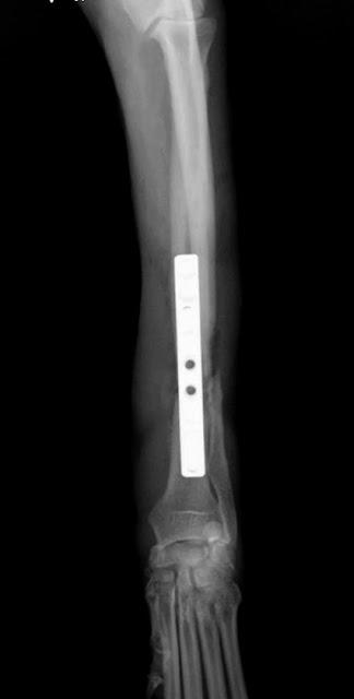 placa osteosíntesis radio perro