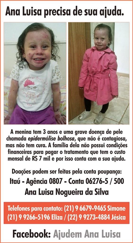 Solidariedade em Teresópolis : David Luiz doa chuteira autografada para ajudar menina com doença rara