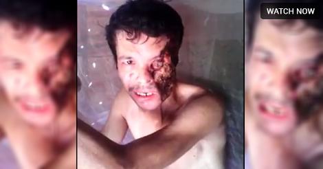mortal wound by septicangel on DeviantArt