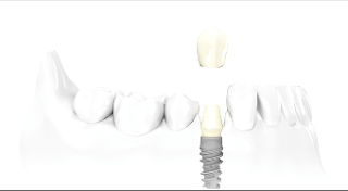 Dental Implants in New York