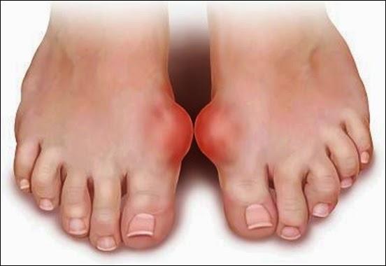 Điều trị cơn gout cấp tính