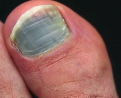 How to Cure dark toenails: Toenail Fungus Treatment