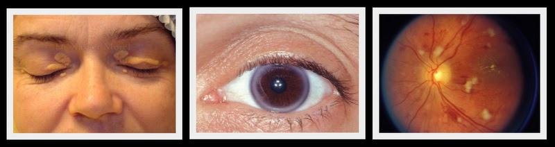 Memphis Family Vision Ocular Signs Of Heart Disease