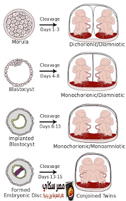 تعرف على أنواع الحمل المختلفة Different types of pregnancy