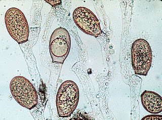 Allomyces, image found at UC Berekley.