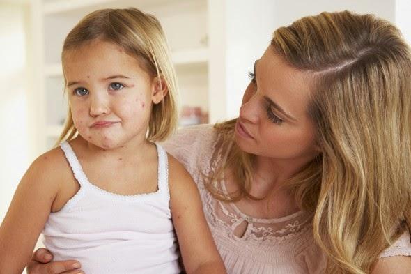 Cara Mengobati Cacar Air Pada Anak Dan Bayi