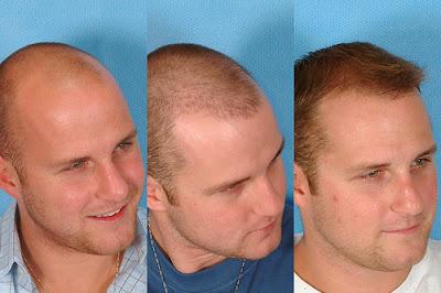go style: Hair Transplant Timeline