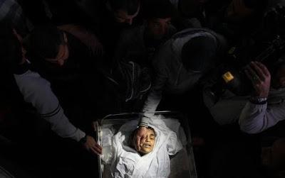 Imagens fortes-atenção- crimes de Israel - foto 6