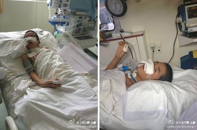 Du Chuanwang Korban Bullying, Koma 8 Hari Karena Anusnya Dipasangi Kompresor [ www.BlogApaAja.com ]