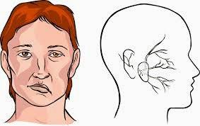 STROKE (Transient Ischemic Attack)