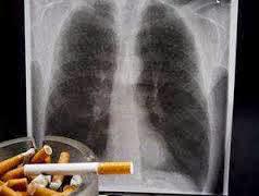 Kanker Paru-Paru Dan Pencegahannya
