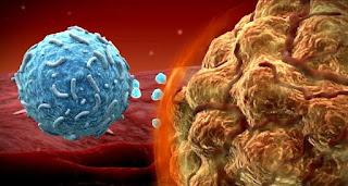 imunoterapi untuk kanker limfoma hodgkin
