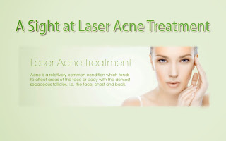 A Look at Laser Acne Therapy