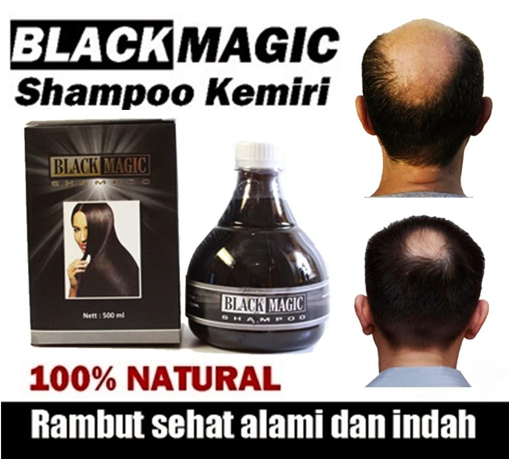 Jual Produk Black Magic Kemiri Shampoo ASLI 100% Alami - Black Magic Shampoo adalah shampoo penumbuh rambut, pemanjang rambut, dan menutrisi rambut dalam pertumbuhan, penghalus rambut berbahan kemiri, lidah buaya dan kemiri