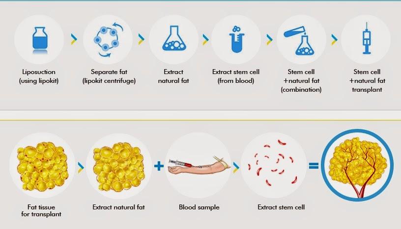 proses cangkok lemak di klinik bedah plastik wonjin seoul korea