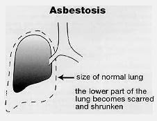 Asbestosis Causes, Symptoms, Diagnosis, Treatment, Prevention, Home Remedies