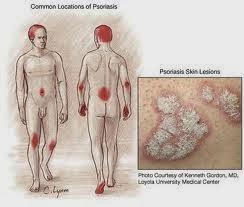 Cara Menyembuhkan Penyakit Psoriasis Secara Tradisional