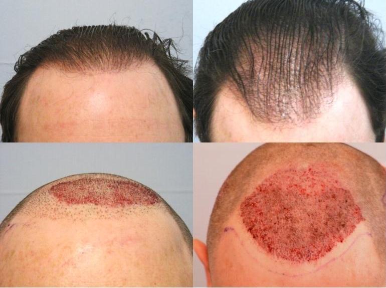 hair transplantation costs how hair transplant cost in u k hair ...