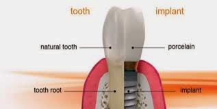 dental-implant-sydney