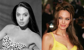 Angelina Jolie Rhinoplasty (Nose Job)