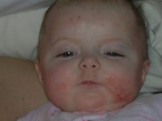 Sự thật cách chữa viêm da cơ địa ở trẻ em chỉ với 100.000 đồng