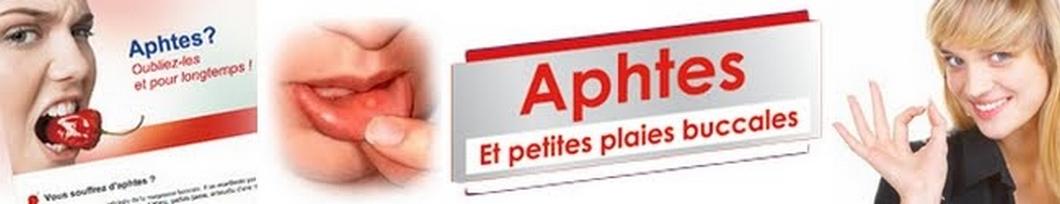 Aphte | Tout sur : prévention, soins, remèdes naturels & traitements contre les aphtes