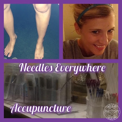 accupuncture, infertility, PCOS, thyroid health, pregnancy, sarah griffith, top beachbody coach, elite beachbody coach,