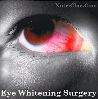 Eye Whitening Surgery - Facts About I-BRITE Conjunctiva Removal Procedure