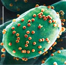 Virus ACTV-1; Virus Yang Bisa Bikin Bodoh!