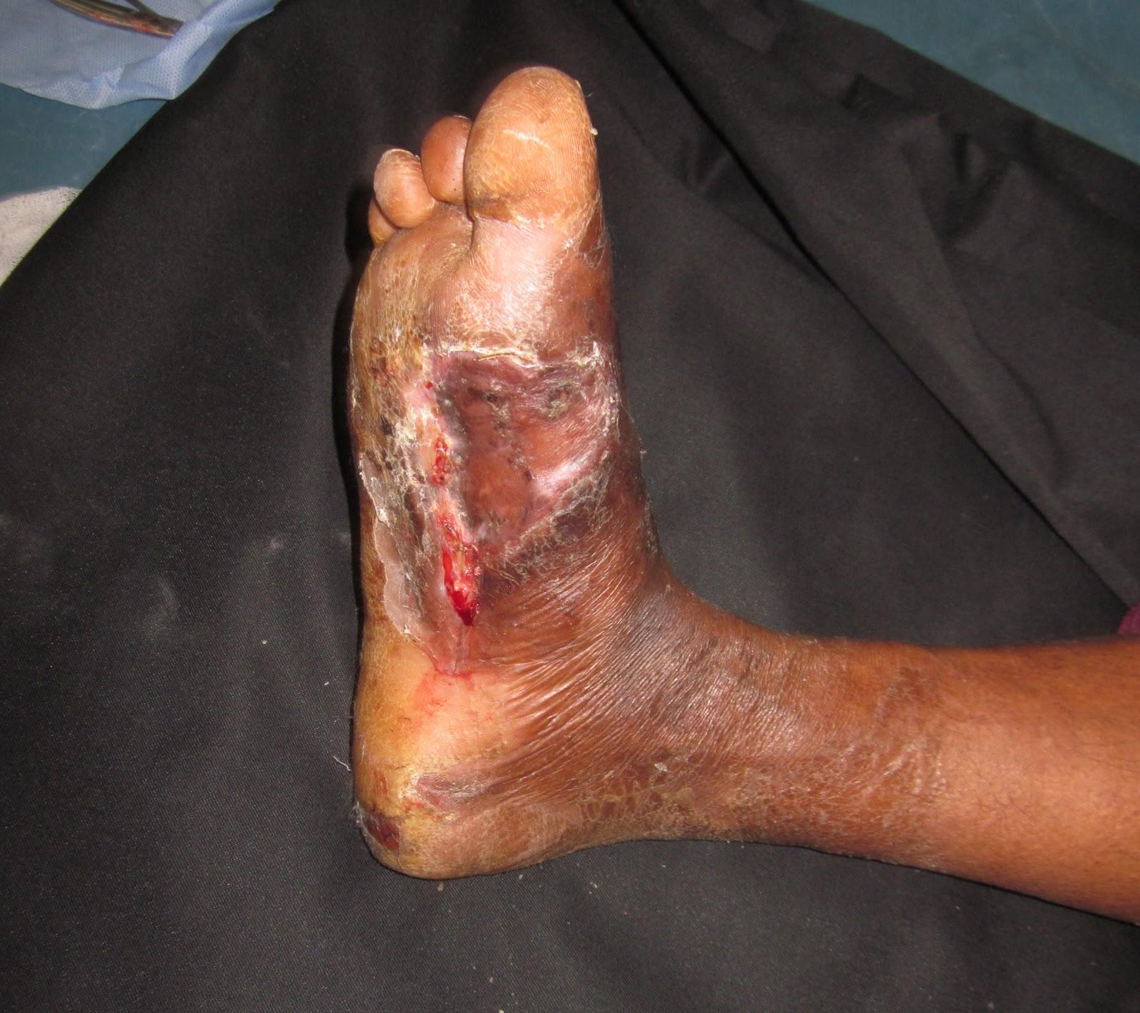 Gangrene Causes - Mayo Clinic