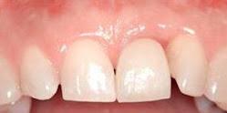 Denti Fissi Subito - Fase 3