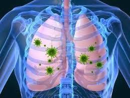 pengobatan herbal infeksi paru-paru