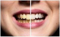 تغير لون الأسنان