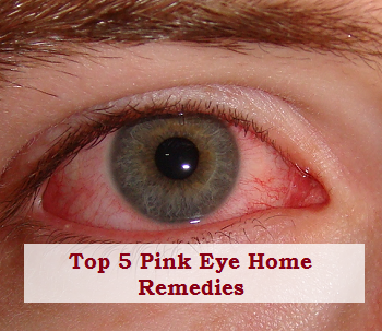 Top 5 Pink Eye Home Remedies